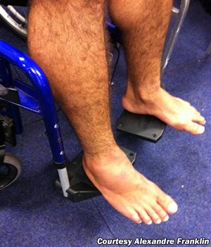 rousimar-palhares-broken-foot.jpg