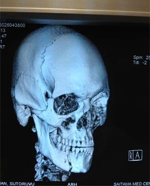 stefan-struve-broken-jaw.jpg