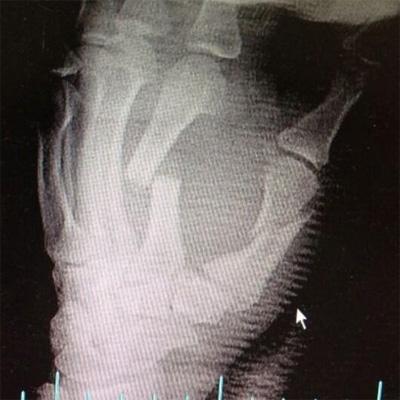 kevin-souza-broken-hand.jpg