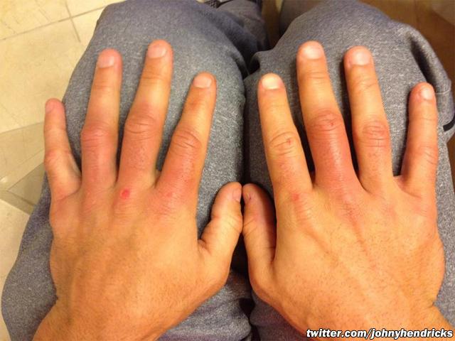 johny-hendricks-ufc-167-swollen-hands