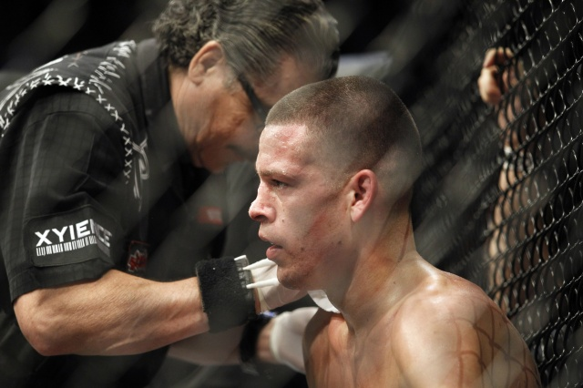 nate-diaz-ufc-on-fox-5
