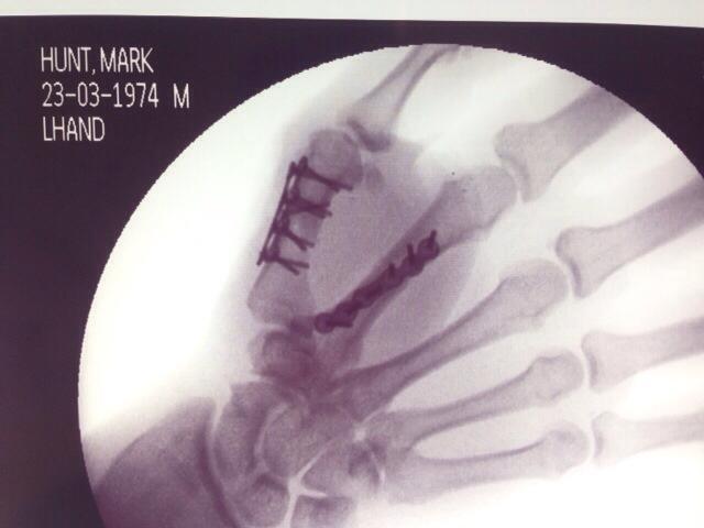 mark-hunt-broken-hand