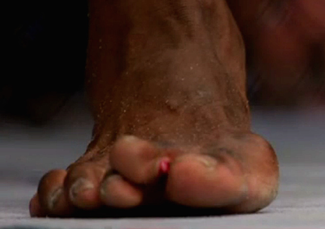 uriah-hall-broken-toe-screenshot-2