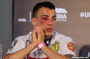 thomas-almeida-post-ufc-fight-night-56