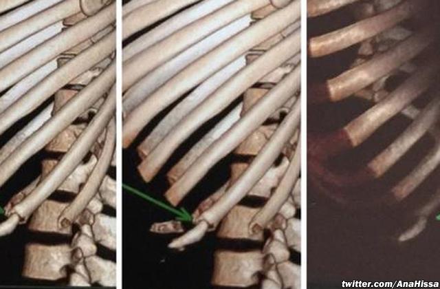 Jose Aldo's injured ribs