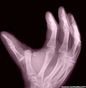 roy-nelson-broken-hand