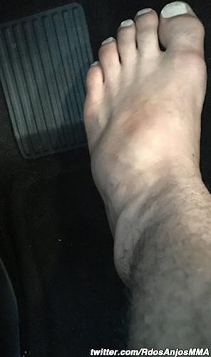 rafael-dos-anjos-broken-foot