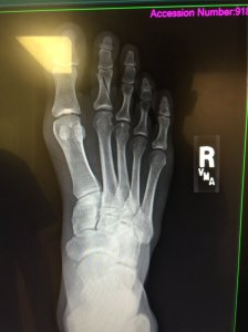 damon-jackson-broken-toe-xray