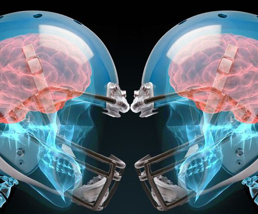 Concussion-related lawsuits are flowing through courts at a no-huddle pace. (Photo: Gannett Illustration)
