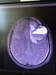 X-Ray of the tumor that Eze Elochukwu had removed. (Photo: Geoff Still)