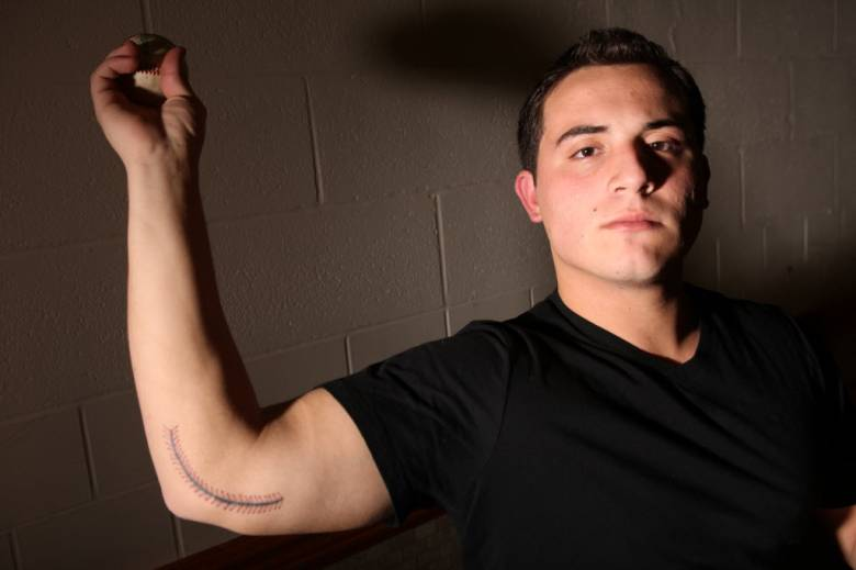 Anthony Apreda shows the tattoo he uses to cover up his scar from Tommy John surgery. (Photo: Kevin R. Wexler, Bergen Record)